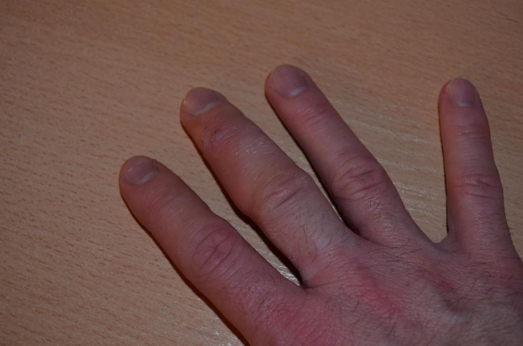 неудивительно, картинка опухший палец ванной