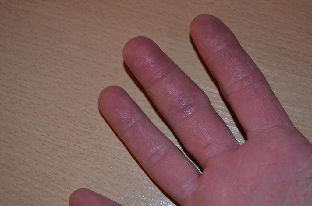 7 методов - побороть боль в пояснице лечением в домашних условиях