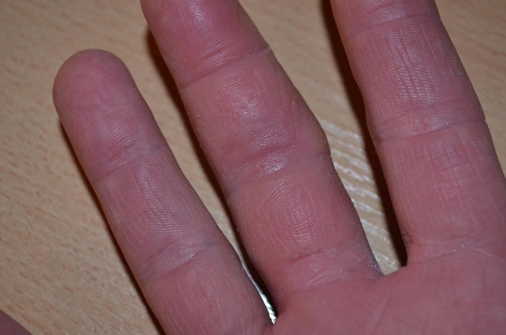 Лечение дерматита кожи народными средствами