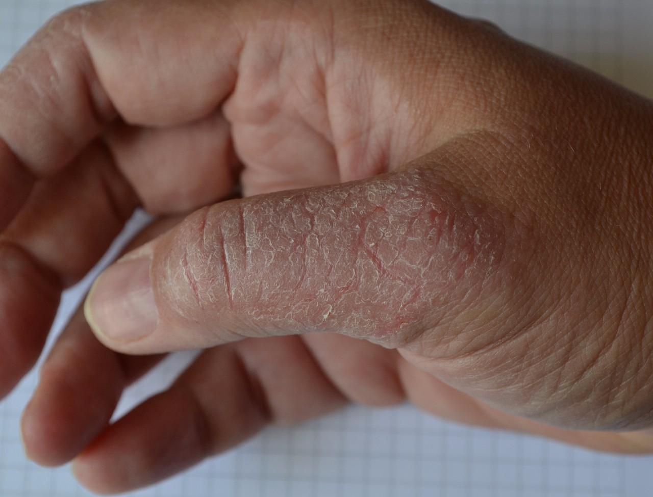 Лечение Псориаза В Санатории Пятигорска