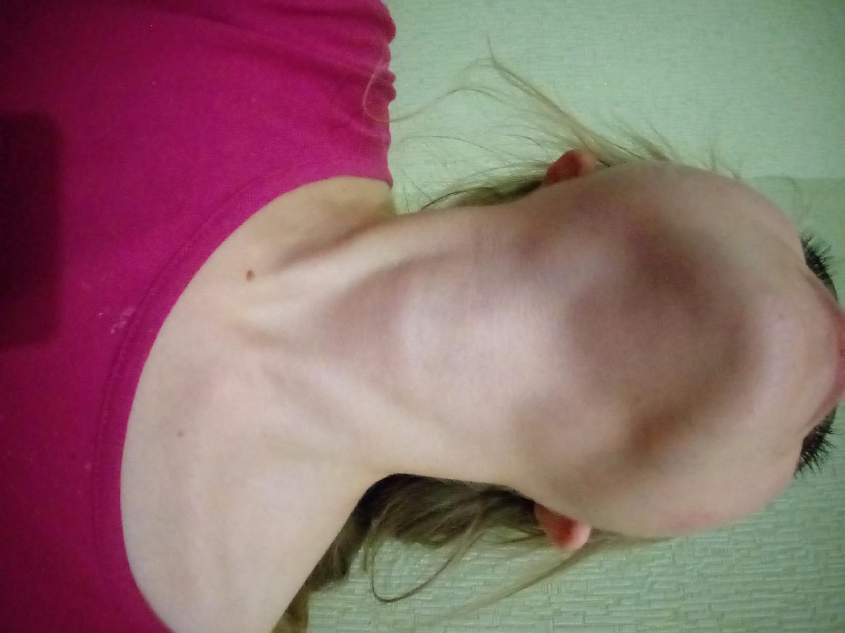 Фото лимфоузел на шее у детей