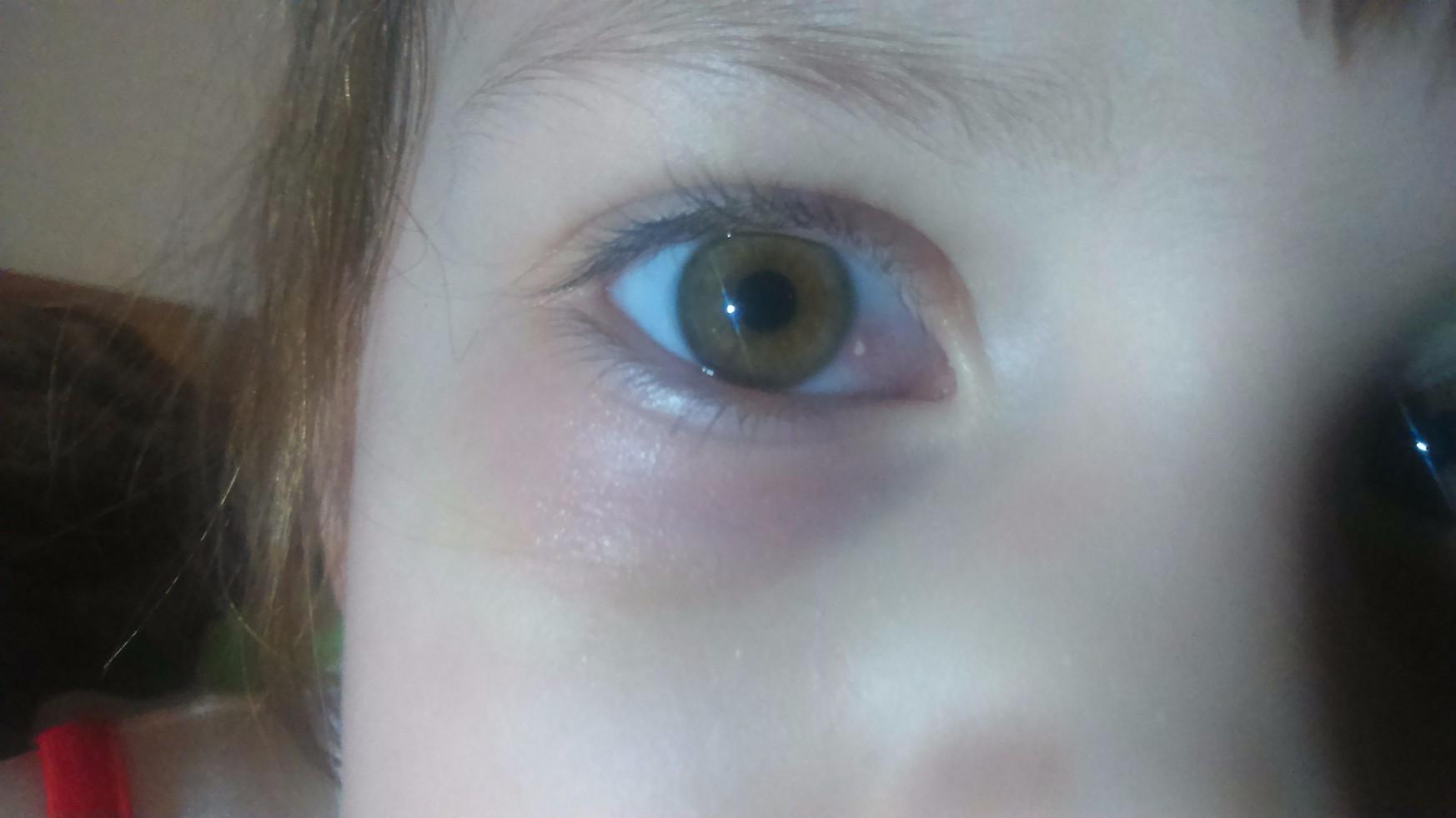 Красный белок глаза у ребенка фото