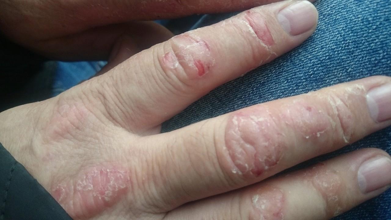 Шелушение кожи на руке от диабета