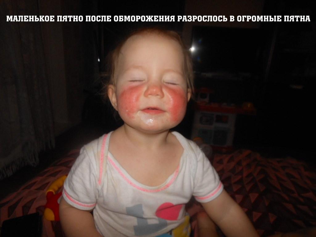 пищевая аллергия на руках фото