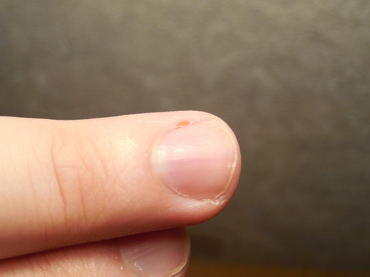 Белые пятна на ногтях ног