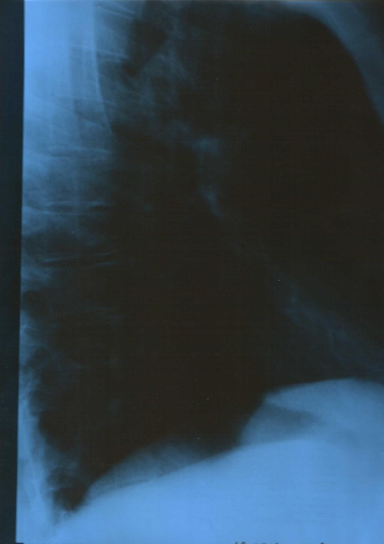 Как долго держится температура при пневмонии