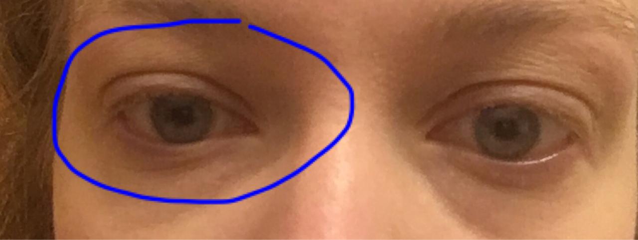 Как сделать чтобы глаза не опухали по утрам 907