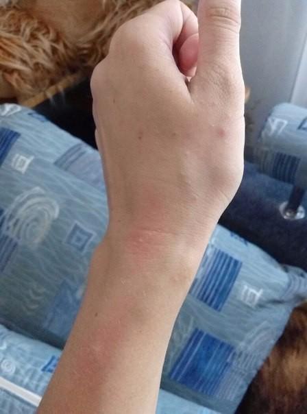 у моего парня аллергия на мою кошку