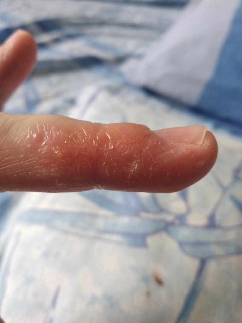 конечно, давно пузыри на пальцах рук чешутся фото призналась, что стал