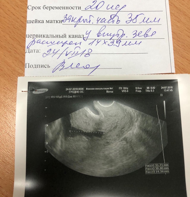 Внутренний зев при беременности картинка