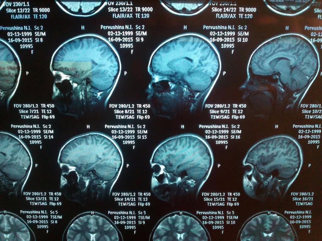 Как расшифровать мрт головного мозга