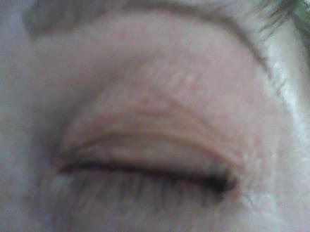 отек на глазах аллергия чем лечить