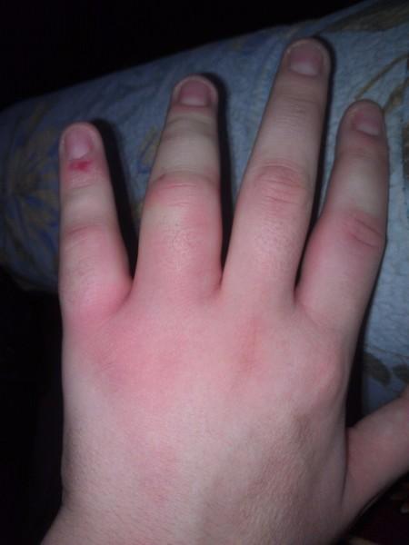 Опухла рука как лечить в домашних условиях 456