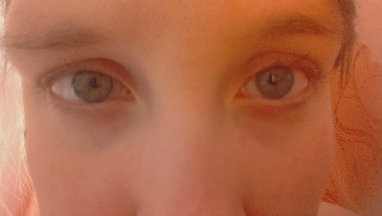 Как сделать чтобы глаза не опухали по утрам 58