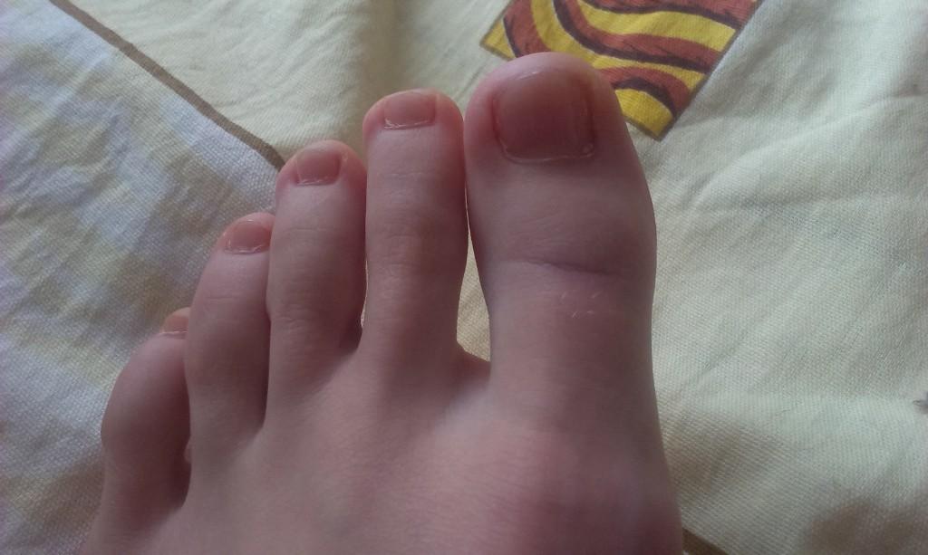 Ушиб пальцев на ноге что делать в домашних условиях 696