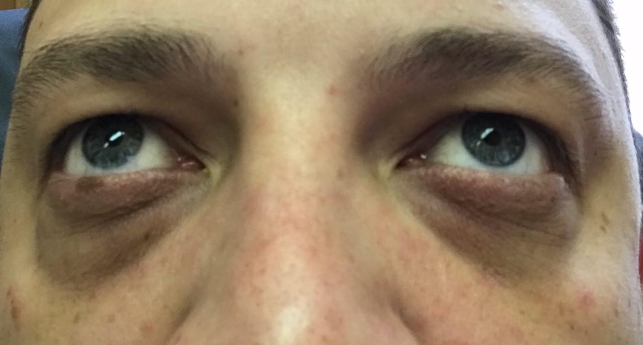 синяки под глазами и простатит