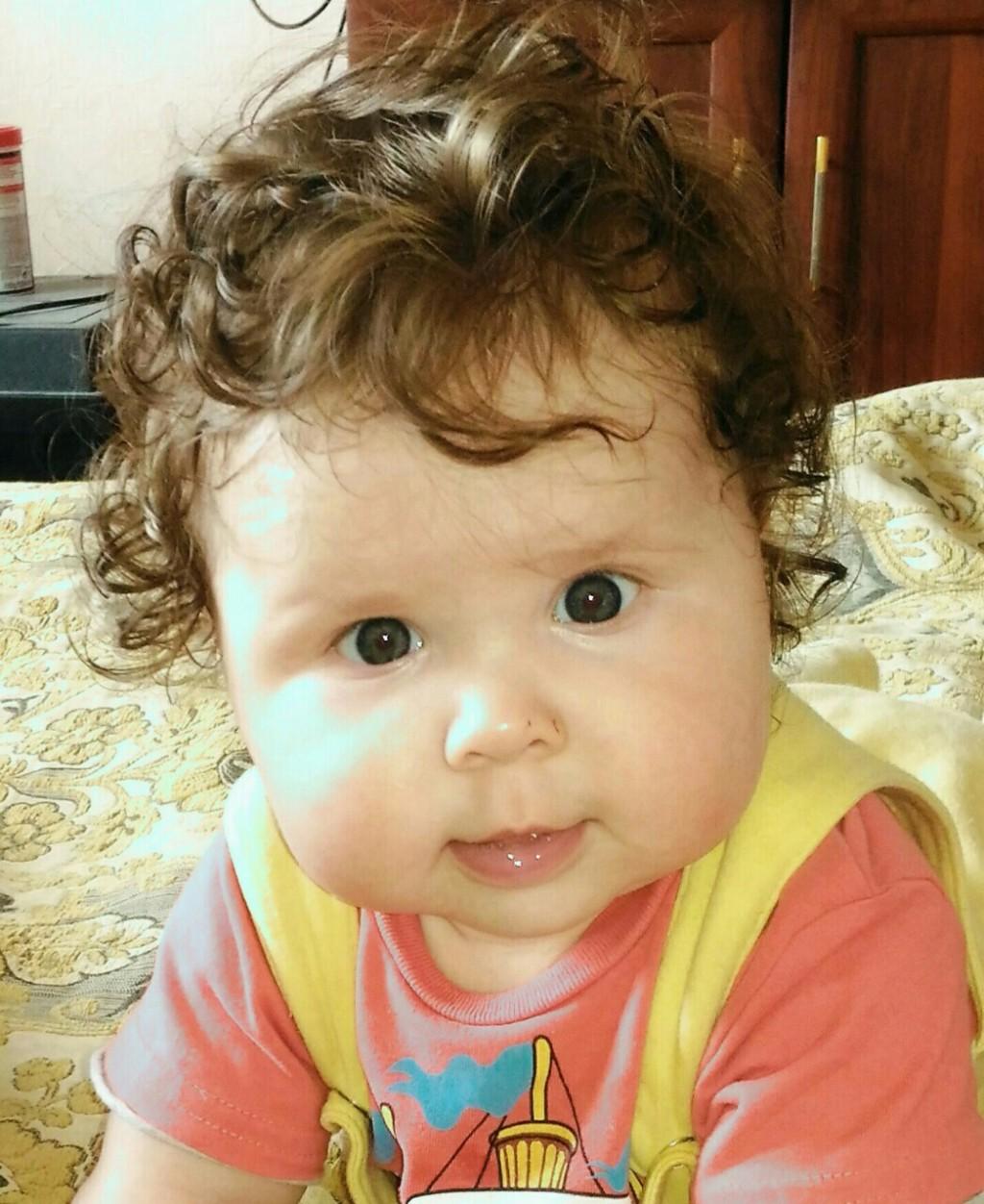 Один глаз меньше другого у ребенка фото