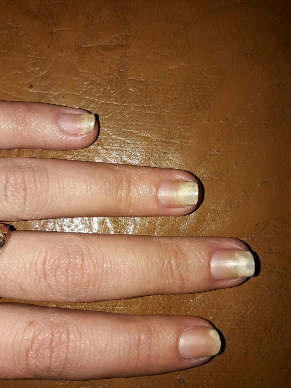 Почему ногти на руках. - m 52