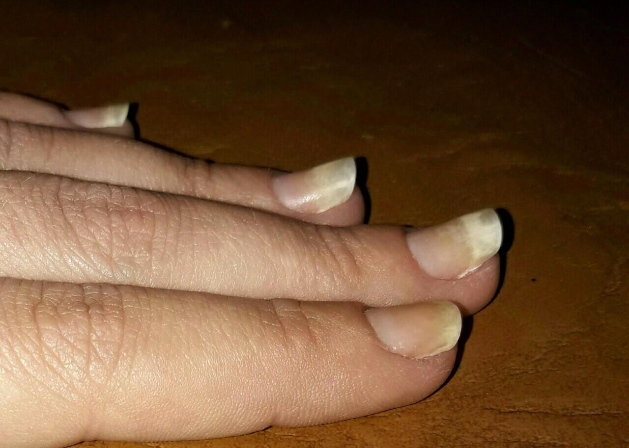 Отходит ноготь на ногтях фото