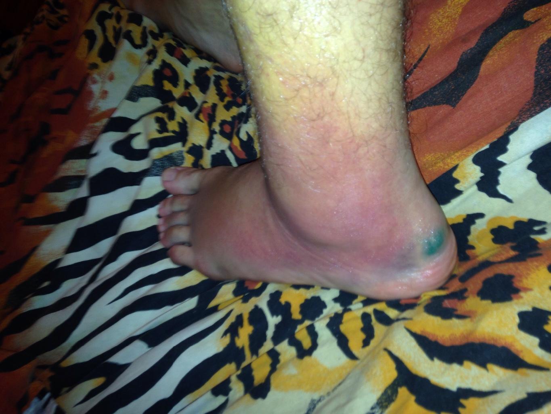 развратные кошечки как снять отек на ноге после растяжения отъебал тещу прямо