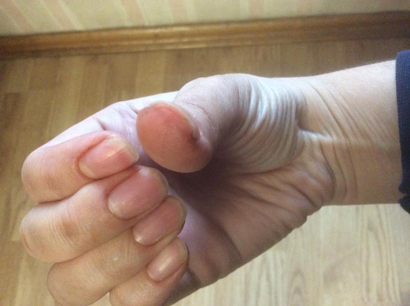 Потемнение ногтей на руках