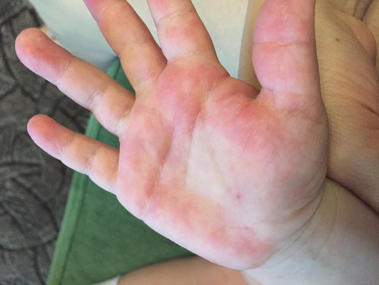 может быть аллергия на манго