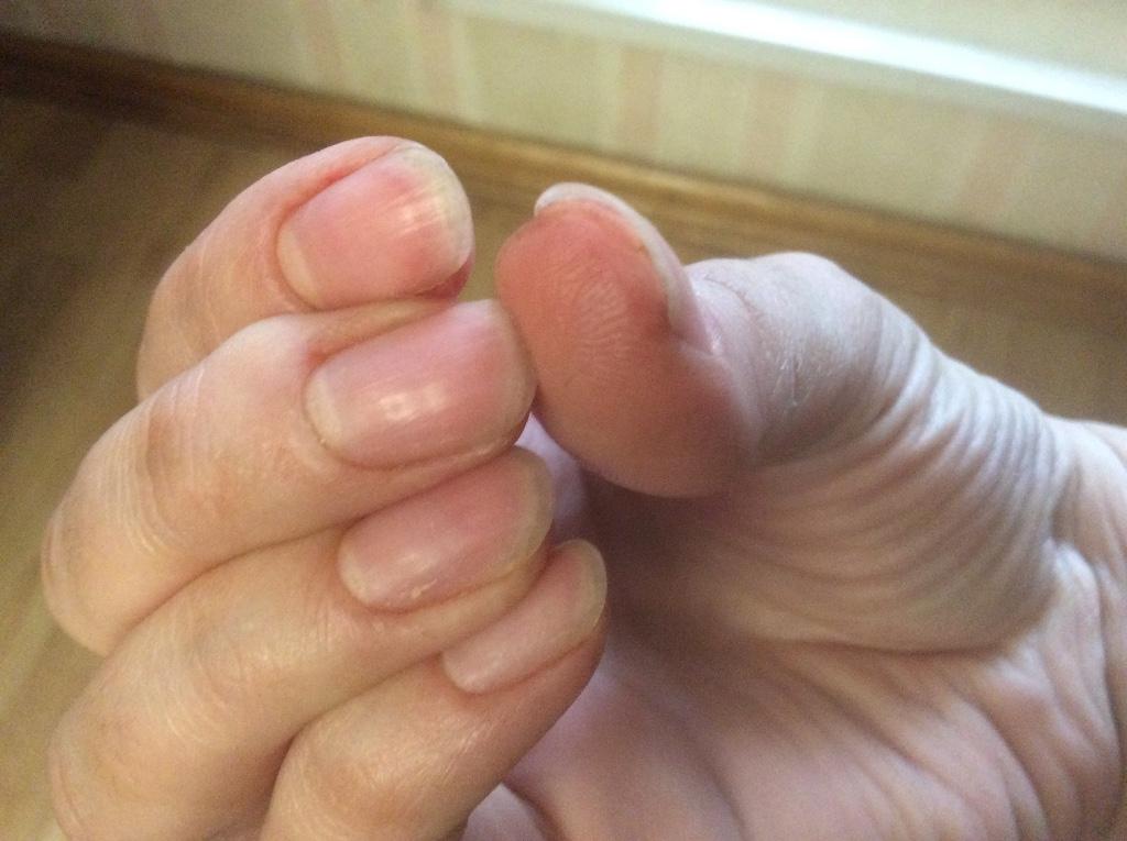 Лопается кожа на пальцах что делать как лечить