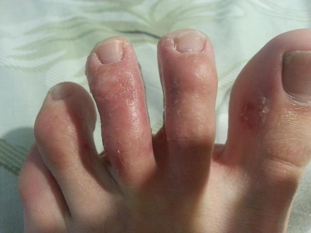 на ногах между пальцами кожа трескается