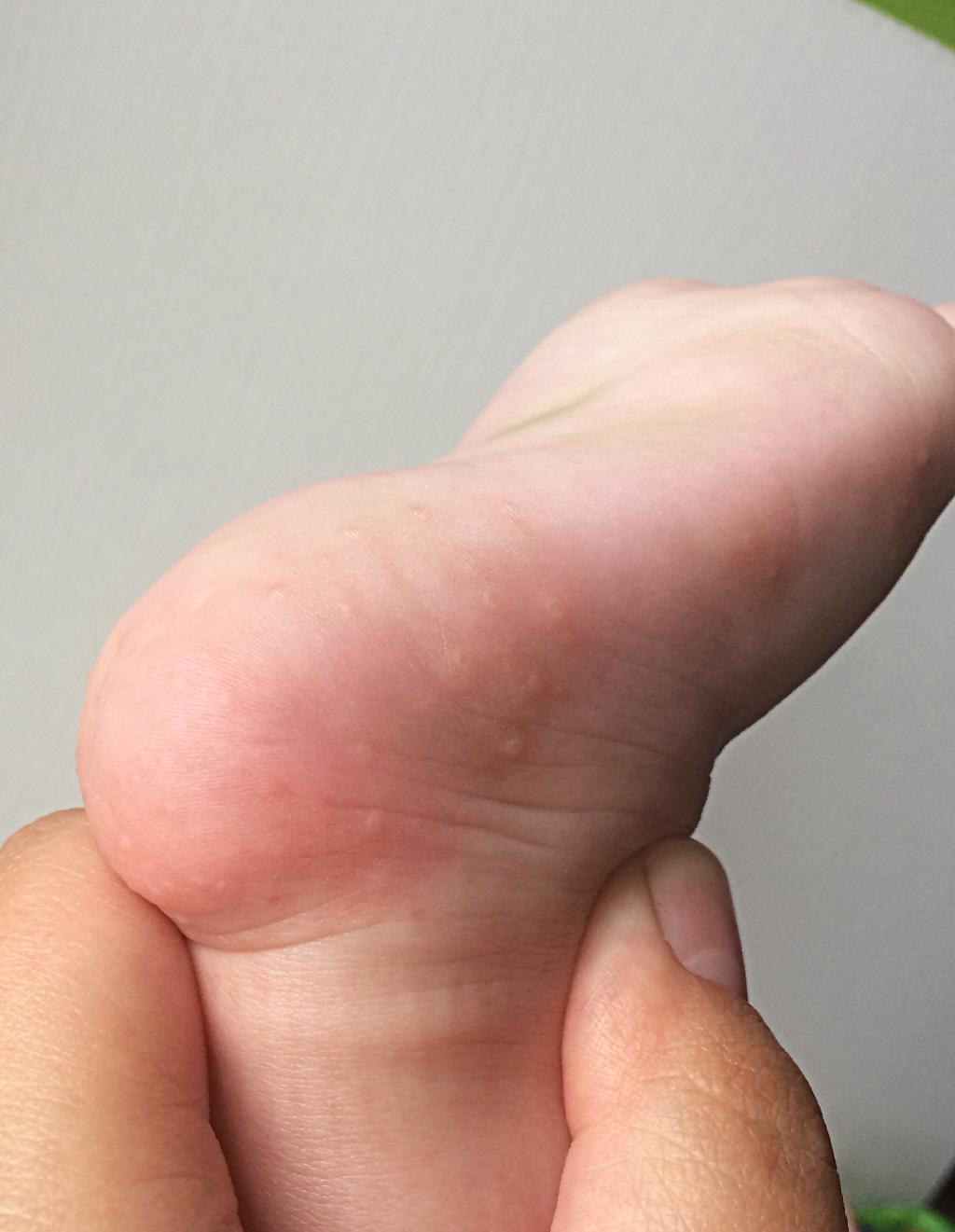 аллергия мелкие пятна
