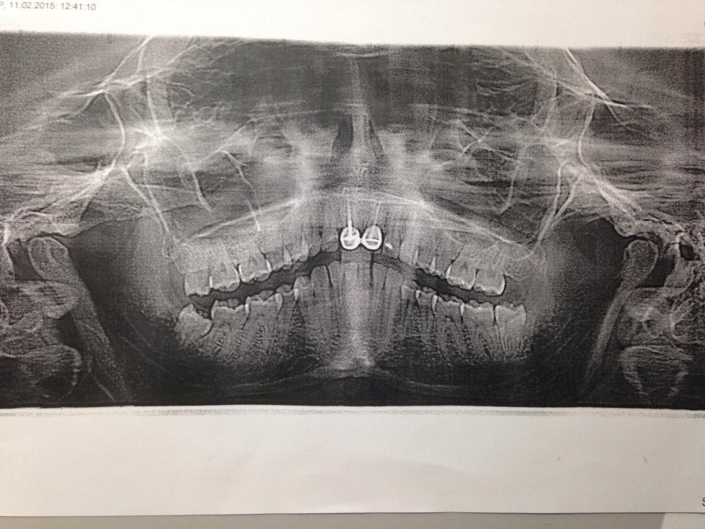 Причины болей в челюстном суставе