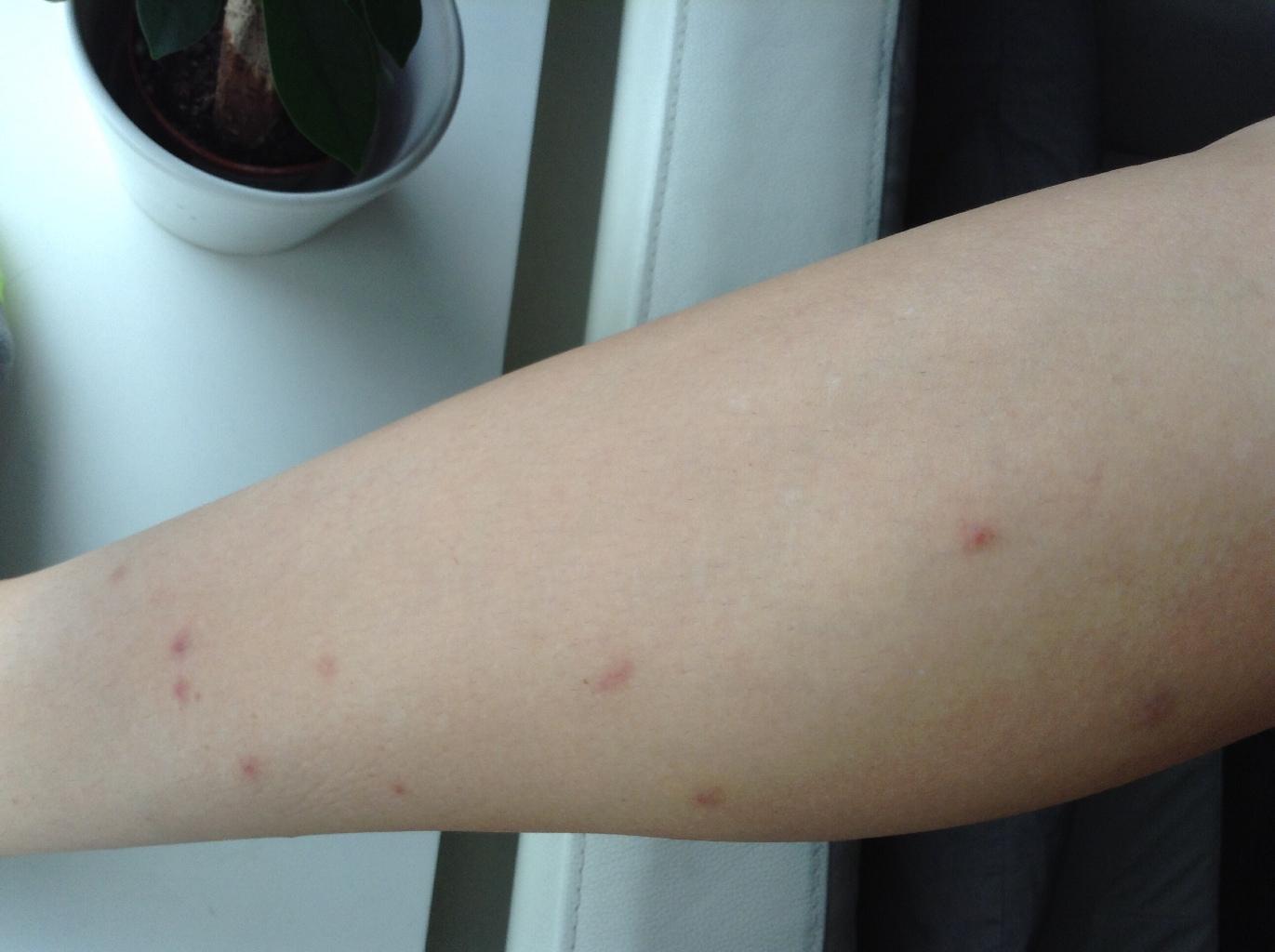 аллергия на смолу для наращивания ресниц