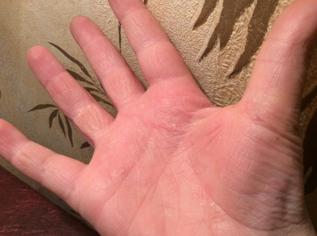 аллергия прыщи на ногах и руках
