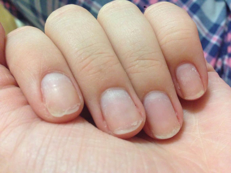 Чтобы ногти не ломались и не слоились: рецепты - Единственная 858