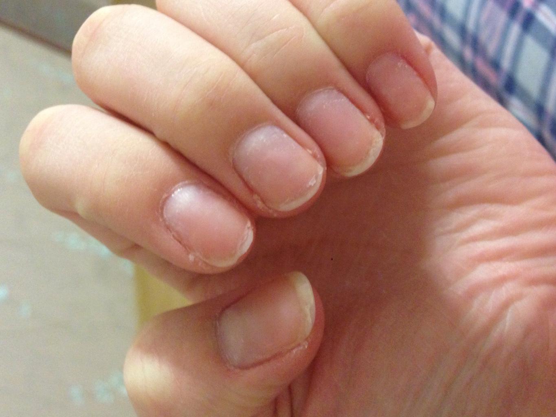 Ногти слоятся очень сильно как