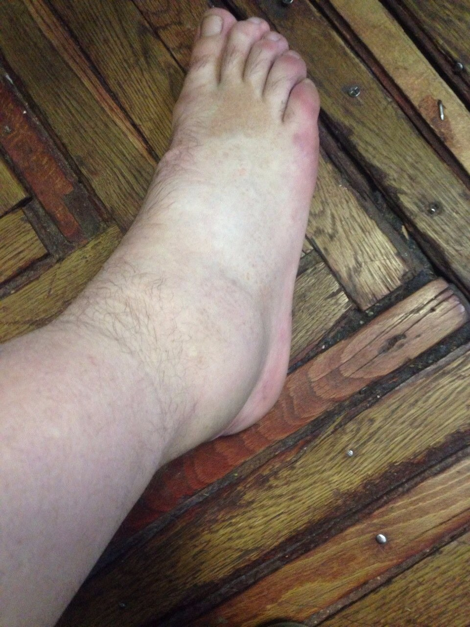 Сильно болит нога при варикозе что делать