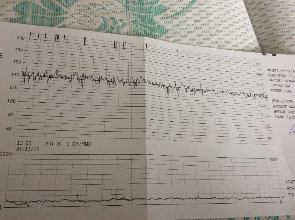 У беременной воспалилась десна 27
