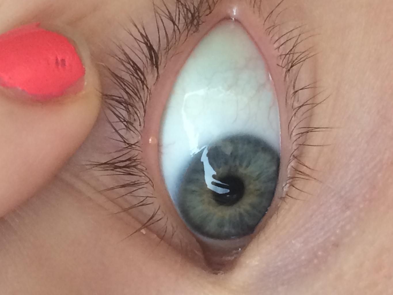Ресница растет внутрь глаза фото