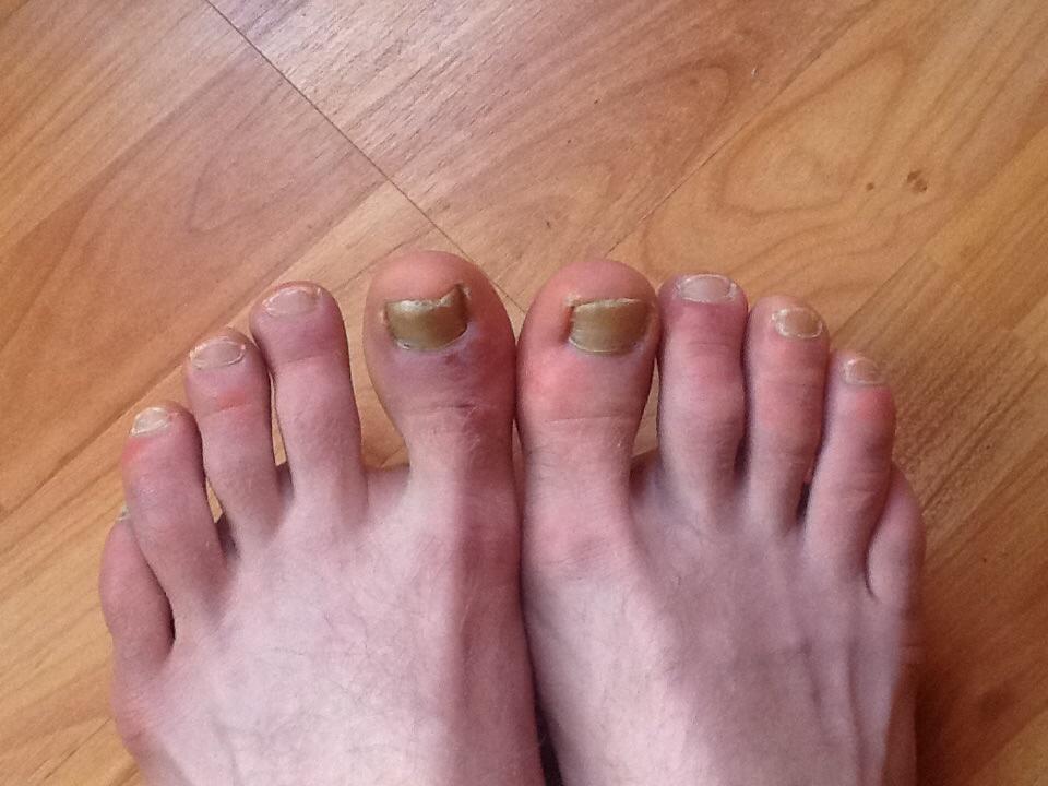 аллергия на холод на ногах причины