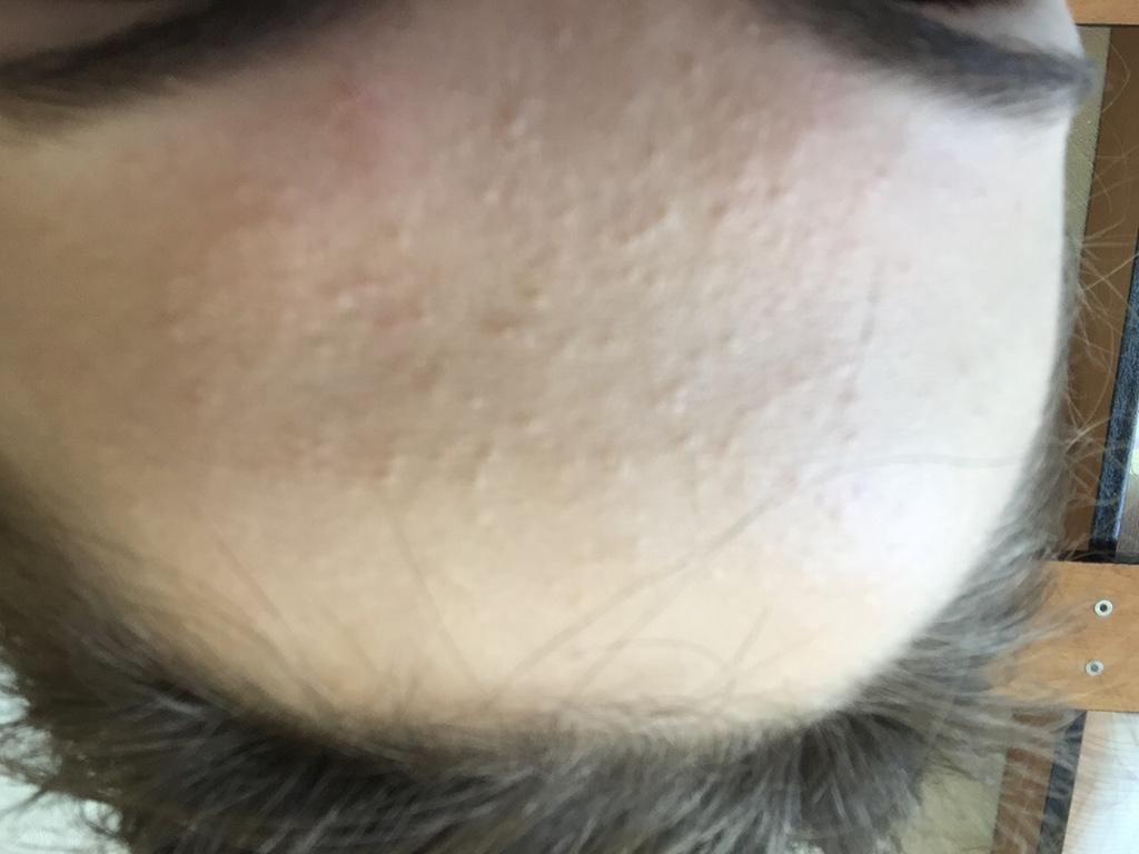 Сыпь на лбу груди и спине