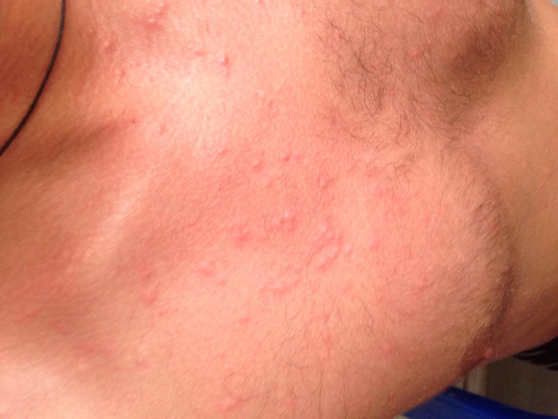 высыпания коже от паразитов