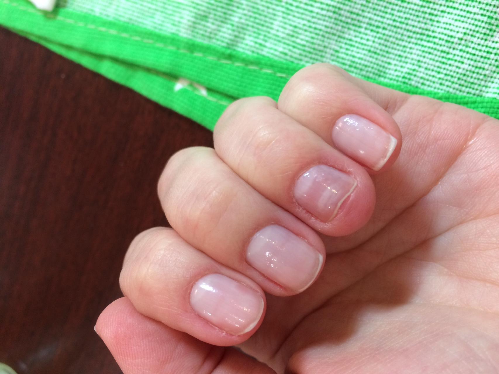 Почему на ногтях рук появляются вмятины? (фото)
