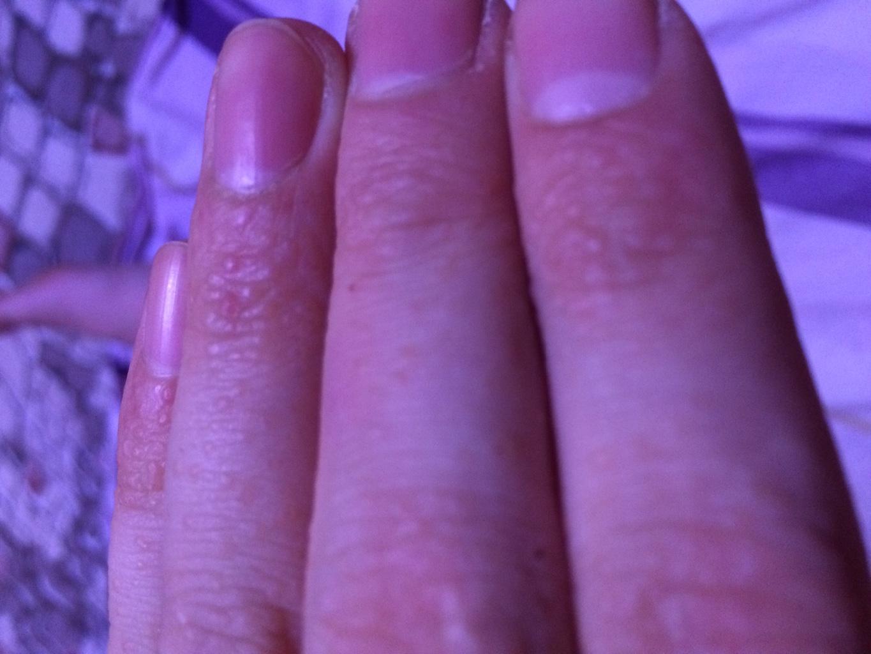 Пупырышки на ногтях