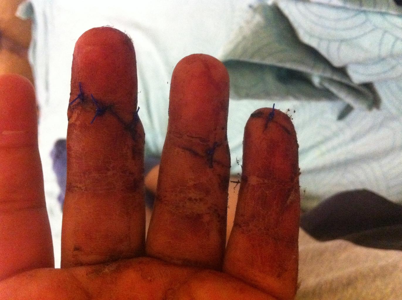 Как сделать порез на пальце 150