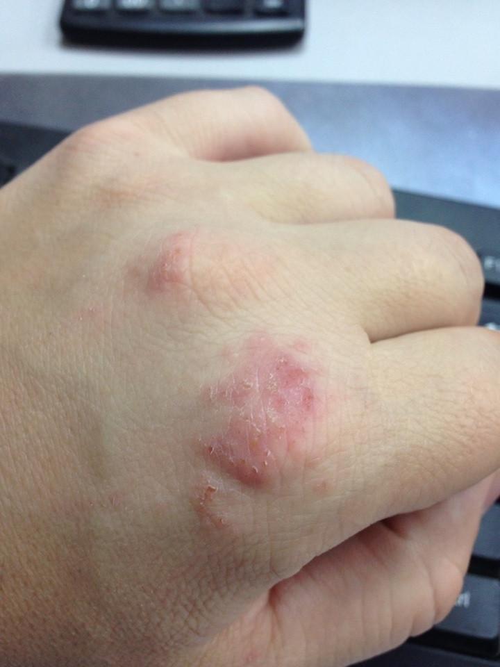 Аллергия на коже в виде красных пятен у детей