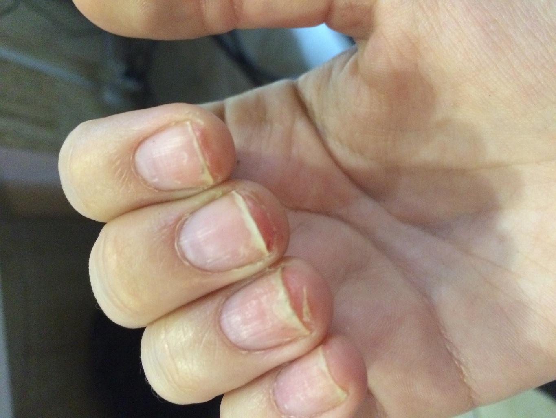 Почему ногти на руках. - m 58