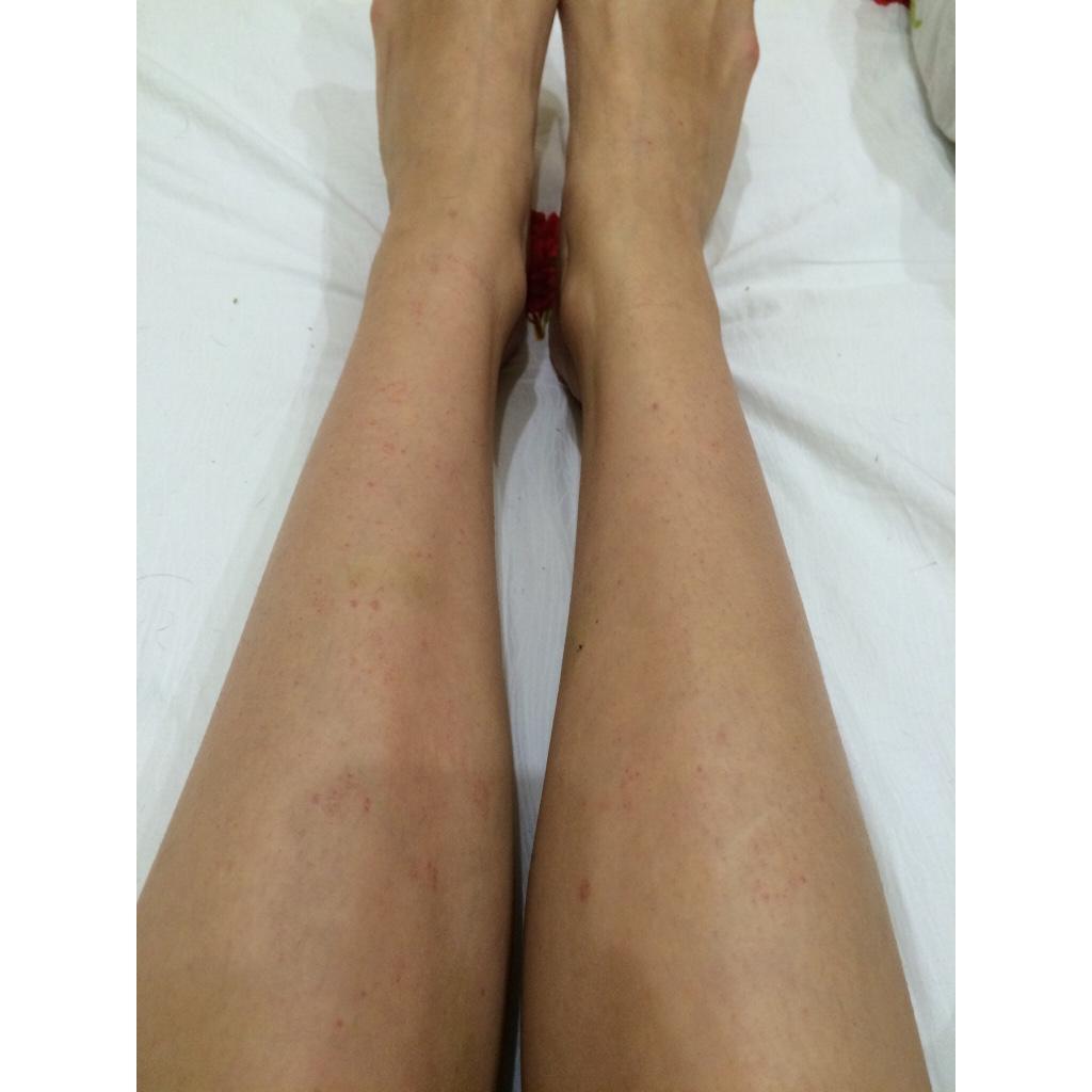 Фото ноги онлайн 11 фотография