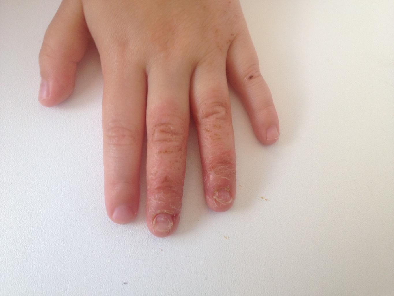 Грибок ногтей на руках у детей лечение симптомы