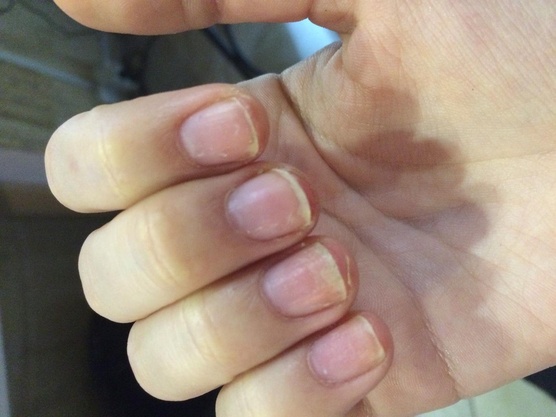Почему трескается кожа вокруг ногтей на руках