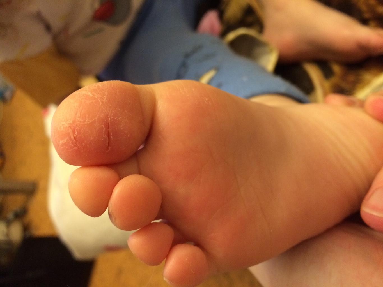 Трещины на пальцах ног у ребенка