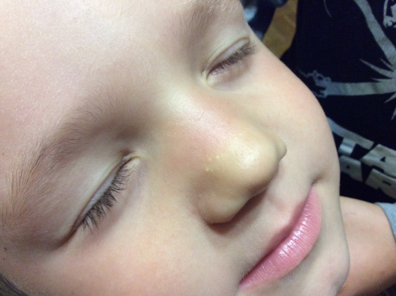 Жировик у ребенка на лице фото